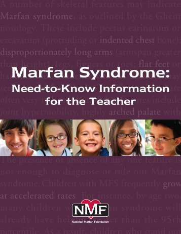 Marfan Syndrome: