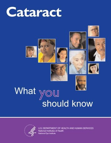 Cataract: What you should know booklet - National Eye Institute ...