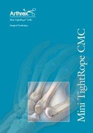 Mini TightRope® CMC Fixation - Arthrex