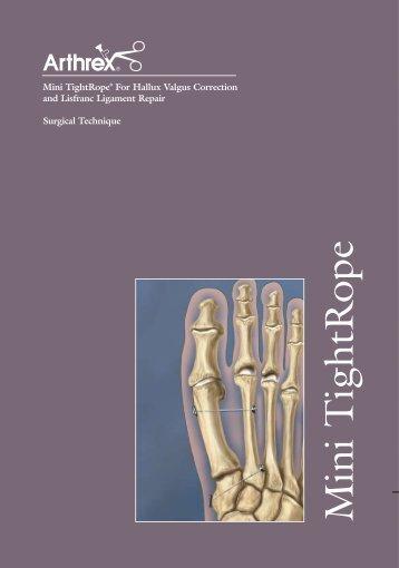 Mini TightRope® For Hallux Valgus Correction and Lisfranc ...