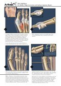 Mini TightRope® For Hallux Valgus Correction and Lisfranc ... - Page 2