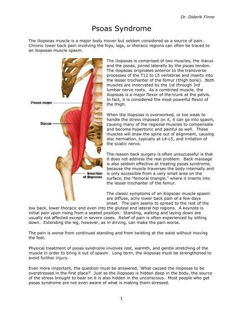 Psoas Syndrome - home.mindspring.com