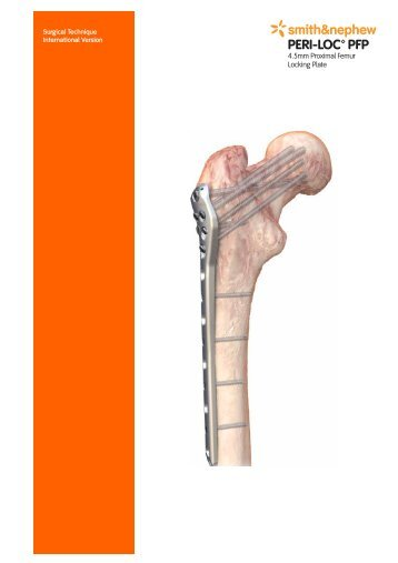 Surgical Technique International Version