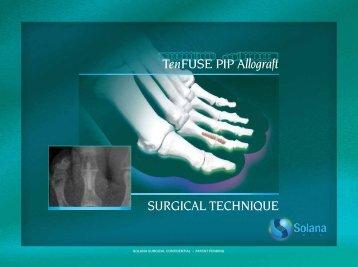 PIP Surgical Technique Brochure (Mobile) - Solana Surgical