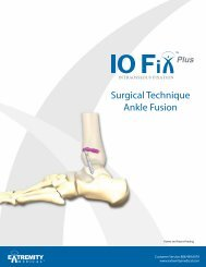 Surgical Technique Ankle Fusion - Extremity Medical