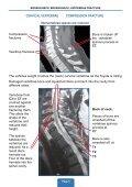 broken neck, broken back, vertebrae fracture - Page 7