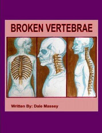 BROKEN VERTEBRAE - Vertebrae Fracture