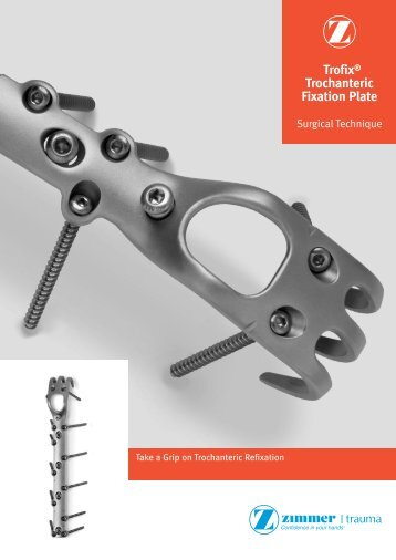 Minimally invasive plate osteosynthesis for humerus diaphyseal fractures