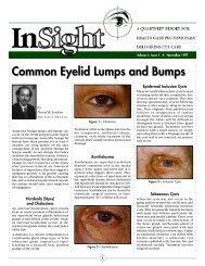 Common Eyelid Lumps and Bumps - Dr. David R. Jordan