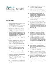 Chapter 22 Seborrheic Dermatitis