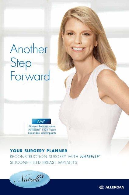 Surgery Patient Planner Allergan