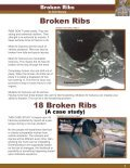 BROKEN RIBS.ai - Vertebrae Fracture - Page 3