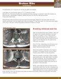 BROKEN RIBS.ai - Vertebrae Fracture - Page 5