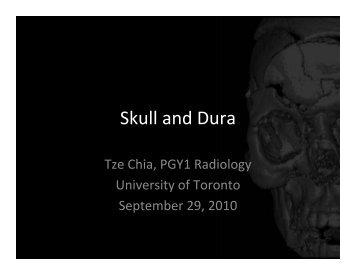 Skull and Dura - Department of Medical Imaging - University of Toronto