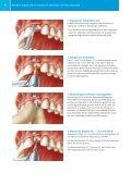 Zimmer® One-Piece Implantatsystem - Zimmer Dental - Seite 6