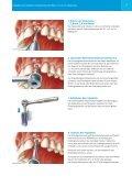 Zimmer® One-Piece Implantatsystem - Zimmer Dental - Seite 7