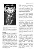 Case report Congenital short pancreas - Chinese Medical Journal - Page 2