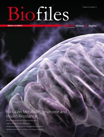 Biofiles v6 n4 Focus on Metabolic Syndrome and ... - Sigma-Aldrich