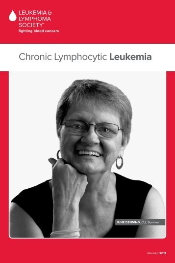 Chronic Lymphocytic Leukemia - The Leukemia & Lymphoma Society