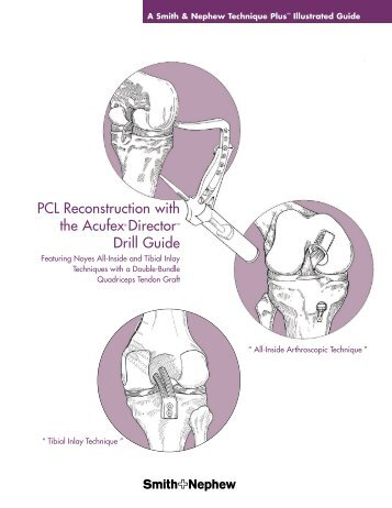 PCL Reconstruction with the Acufex® Director™ Drill Guide