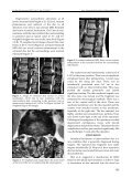 Intraradural Herniation of - Turkish Neurosurgery - Page 2