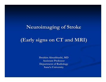 Neuroimaging of Stroke (Early signs on CT and MRI) - Yns-yemen.com