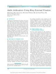 Ankle Arthrodesis Using Ring External Fixation - Orthofix.com