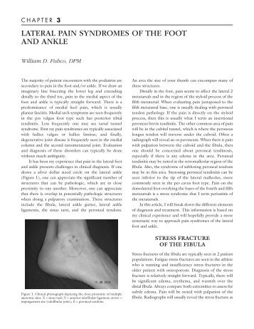 lateral pain syndromes of the foot and ankle - The Podiatry Institute
