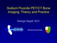 Sodium Fluoride PET/CT Bone Imaging: Theory and
