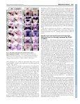 Dlx genes pattern mammalian jaw primordium by ... - Development - Page 3