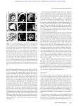 Pax6 activity in the lens primordium is required - Genes ... - Page 6