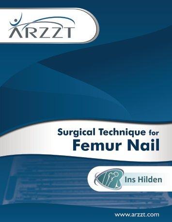 Surgical Technique for Femur Nail - ARZZT