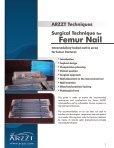 Surgical Technique for Femur Nail - ARZZT - Page 2