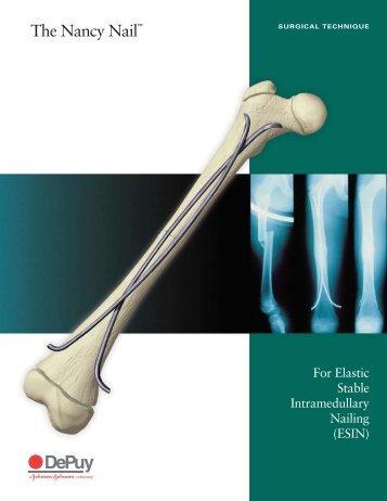 The nancy nail surgical technique - PEI