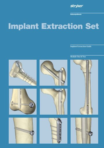 Implant Extraction Set - Stryker