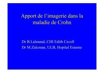 Apport de l'imagerie dans la maladie de Crohn - Gastrospace.com