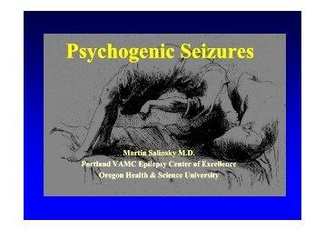 Psychogenic Seizures (PNES) - Epilepsy