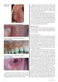 Demystifying Recurrent Oral Ulcerations - IneedCE.com - Page 6