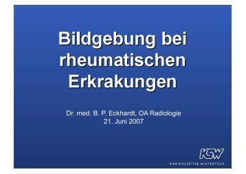 MRI bei rheumatischen Erkrankungen