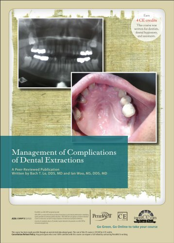 Management of Complications of Dental Extractions - IneedCE.com