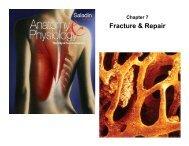 Fracture & Repair