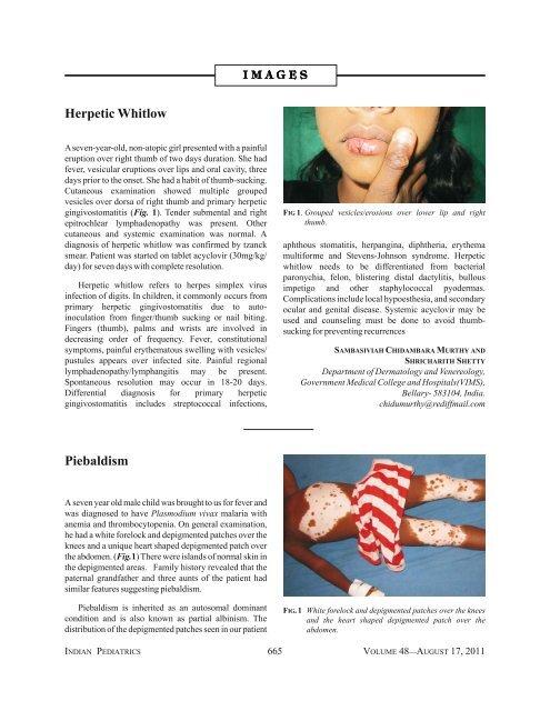 Herpetic Whitlow Piebaldism - medIND