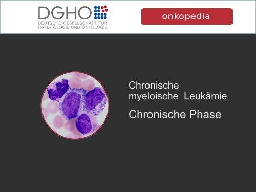 Chronische Phase - Onkopedia