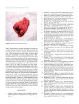 Perineal endometrioma with anal sphincter ... - edigraphic.com - Page 5