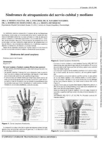 Síndromes de atrapamiento del nervio cubital y mediano - Acceda