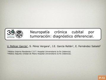 neuropatia crónica cubital por tumoración: diagnóstico ... - Sotocav