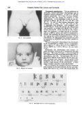 Uveal Coloboma and True Klinefelter Syndrome - Journal of Medical ... - Page 2
