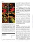 Stellate transformation of invasive trophoblast - Human Reproduction - Page 4