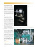 Robotic surgery in urology: fact or fantasy? - Spital Thurgau AG - Page 2