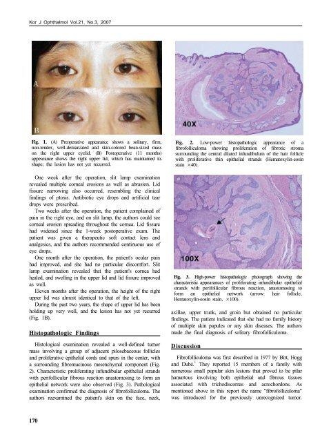 Chang et al, 2007. A Solitary Fibrofolliculoma in - Birt-Hogg-Dubé ...